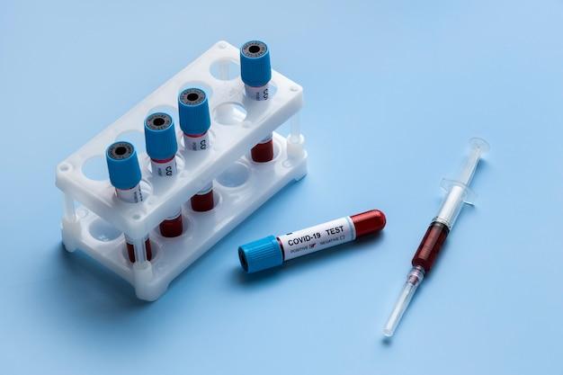 Amostras de sangue para teste cobiçoso em laboratório