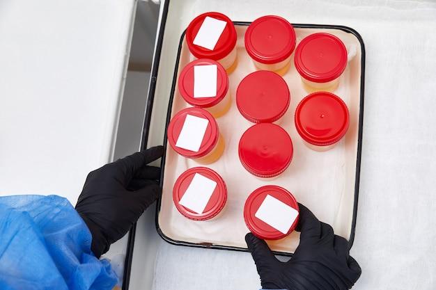 Análise de urina em laboratório. teste médico de urina. amostra de urina para análise laboratorial.