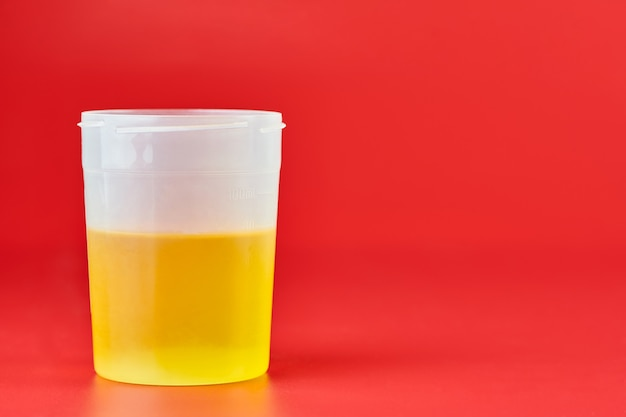 Análise de urina para urolitíase em recipiente