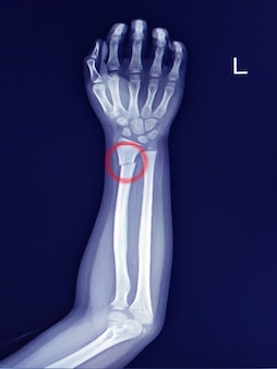 Antebraços de raios x localização da fratura do eixo distal do rádio. esclerose leve na linha de fratura.