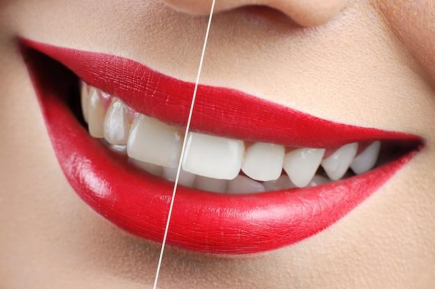 Antes e depois do tiro de clareamento de dentes de mulher de lábios vermelhos