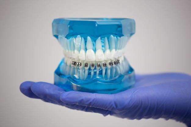 Aparelho dentário amostra odontologia