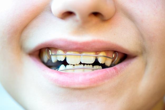 Aparelhos dentais removíveis azuis ou retentores para os dentes na boca dos meninos