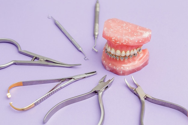 Aparelhos dentários em fio metálico nos dentes modelo ortodôntico