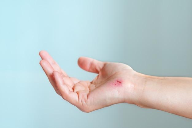 Arranhão, ferido, femininas, mão, closeup, cuidados de saúde, medicina, conceito