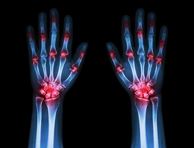 Artrite articular múltipla ambas as mãos (gota, reumatóide)