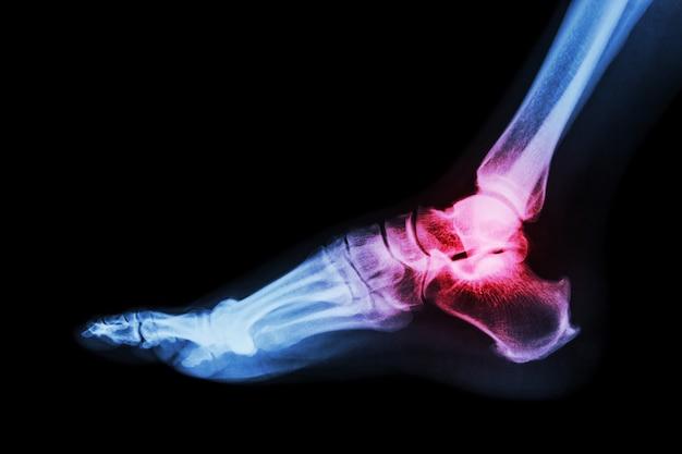 Artrite no tornozelo. a radiografia de tórax do tornozelo (vista lateral) mostra uma articulação do tornozelo inflamada.
