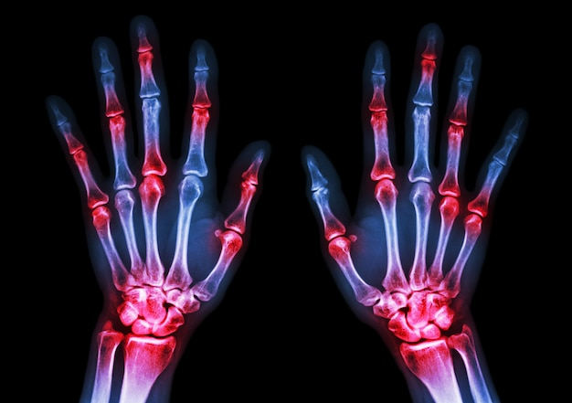 Artrite reumatóide. a radiografia do filme mostra ambas as articulações múltiplas da inflamação.