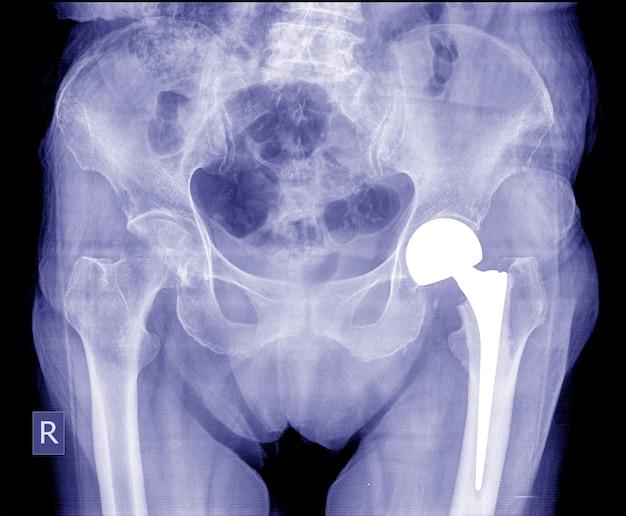 Artroplastia total de quadril, imagem de raios-x de muito boa qualidade mostra pós-operatório no quadril.