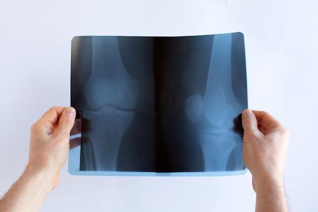 As mãos de um médico estão segurando as articulações dos joelhos de raio-x do filme