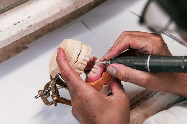 As mãos de um técnico de prótese dentária preenchendo um implante dentário com uma ferramenta elétrica em uma oficina