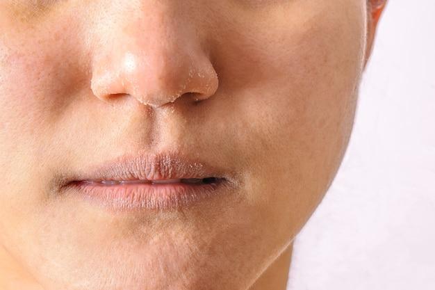 As mulheres alérgicas têm o nariz e os bordos secos do eczema no close up da estação do inverno.