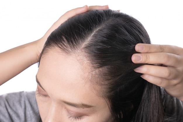 As mulheres asiáticas novas preocupam-se sobre a queda de cabelo do problema, cabeça calva, caspa.
