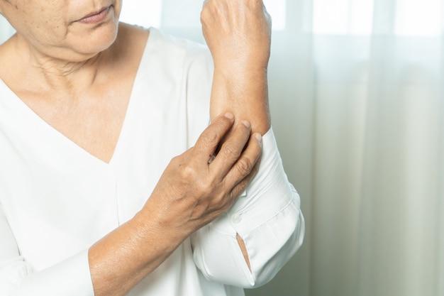 As mulheres sênior arranham a coceira no braço de eczema, conceito de cuidados de saúde e medicina