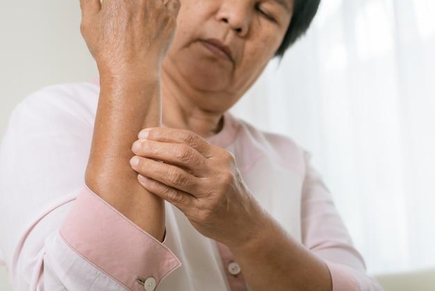 As mulheres sênior arranham o braço a coceira no conceito de braço, cuidados de saúde e medicina de eczema