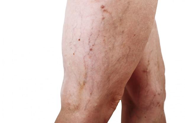 As varizes da doença nas pernas de uma mulher