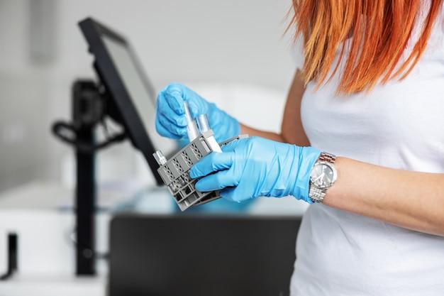 Assistente de laboratório segurando amostras de sangue e checando se é covid-19 positivo.
