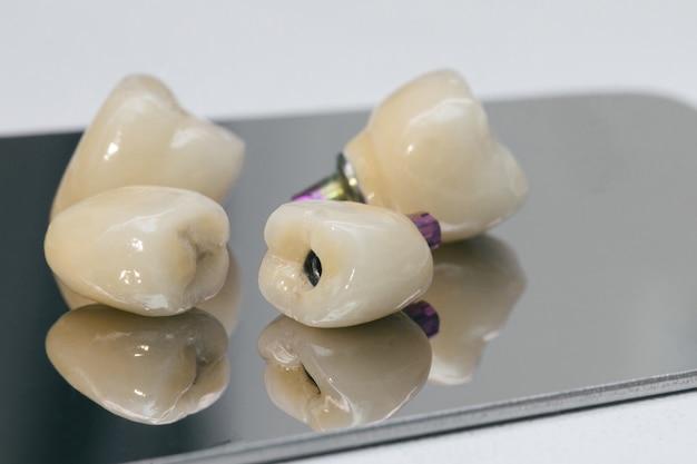 Atenção à saúde bucal. objetos de dentista dental. implantes dentários de zircônio.