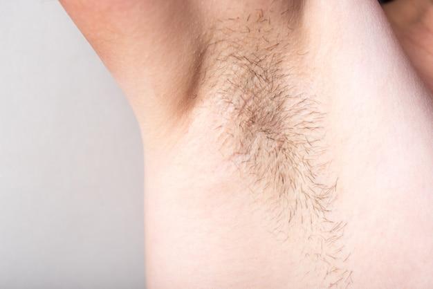 Axilas barbadas femininas, depilação, conceito de remoção de cabelo na parede cinza.