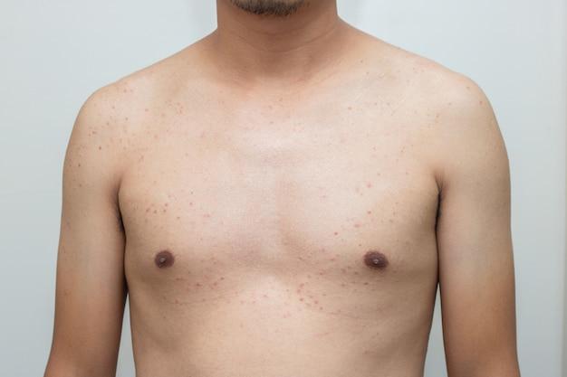 Bactérias da acne no skincare do corpo masculino