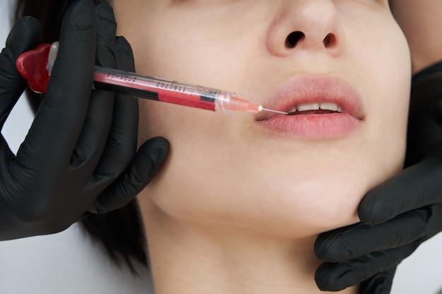 Bela mulher recebe uma injeção nos lábios