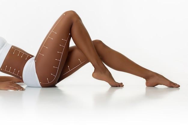 Belas pernas femininas e quadris isolados no fundo branco. beleza, cosmética, spa, depilação, tratamento e fitness. fit e esportivo, sensual. bodycare e lifting, linhas de cirurgia de correção.