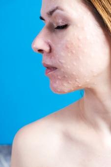 Biorevitalização da pele real.