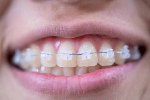 Boca de mulher jovem sorrindo com aparelho branco e dentes saudáveis