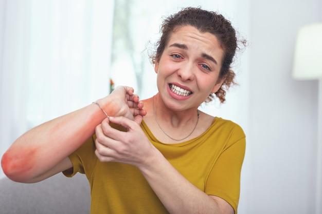 Braço com coceira. jovem, com aparência de doente, impaciente e ansiosa para tirar uma pulseira, causando sua reação alérgica na forma de uma erupção cutânea no braço
