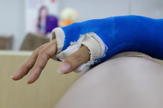 Braço de mulher que se feriu e usou uma tala