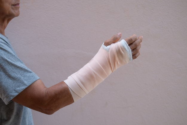 Braço quebrado ou lesionado em gesso ou articulação do dedo e cirurgia de pulso dormente para conceito médico e de saúde