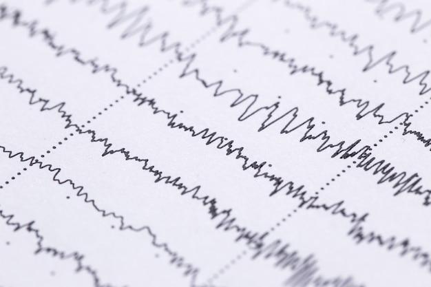 Cardiograma em uma folha de close-up de papel. textura de ondas pulsadas.