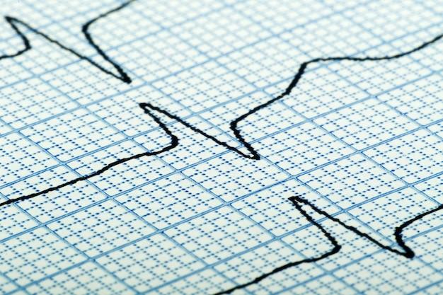 Cardiograma (também conhecido como eletrocardiograma, também conhecido como ecg) de batimento cardíaco em papel quadriculado azul