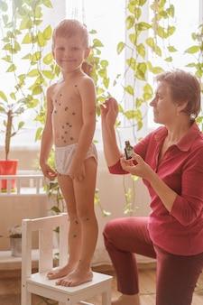 Catapora em um garotinho - uma mulher trata uma criança em casa por catapora