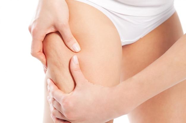 Celulite - corpo e beleza