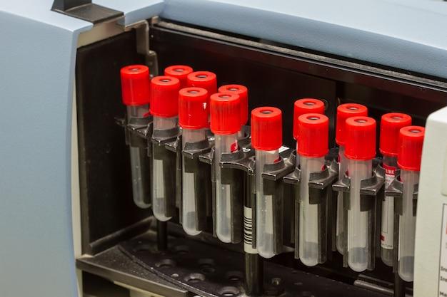 Centrifugador de teste de separação de sangue médico em laboratório químico, equipamento de medicina