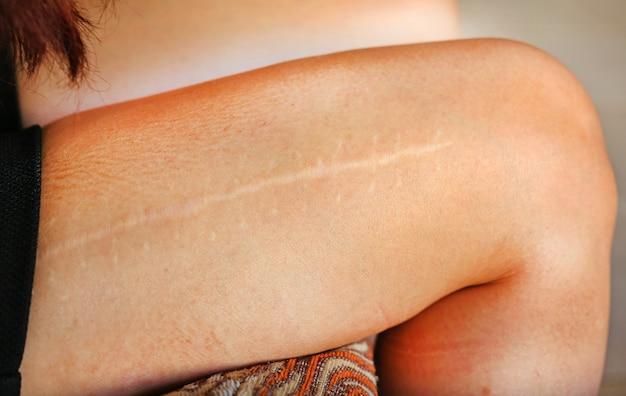 Cicatriz grande na perna feminina