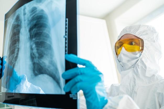 Cientista, microbiologista ou dotor verificando infecção viral ou lesão por pneumonia no filme de raio-x do tórax em laboratório