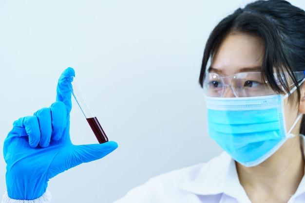 Cientista técnico analisando amostra de sangue retida em tubo de ensaio em laboratório para testá-la em covid, covid-19, análise de vírus de coronavírus