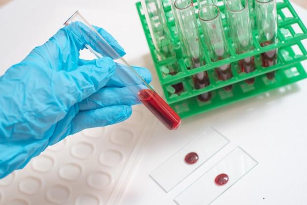 Cientista, trabalhando, com, amostra sangue, em, laboratório