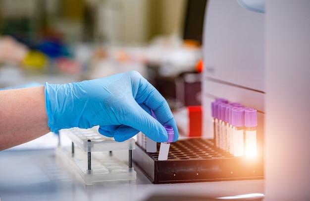 Cientistas mãos com tubos de ensaio