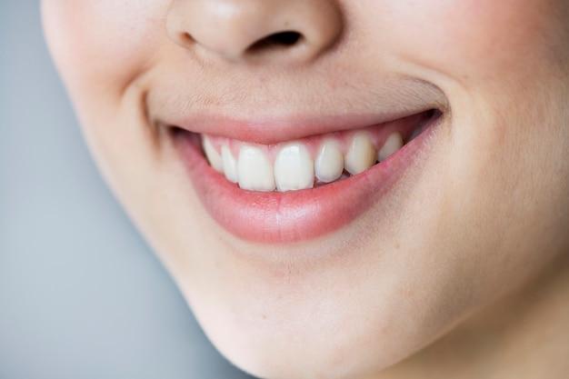 Cima, retrato, de, jovem, menina asiática, dentes, sorrindo