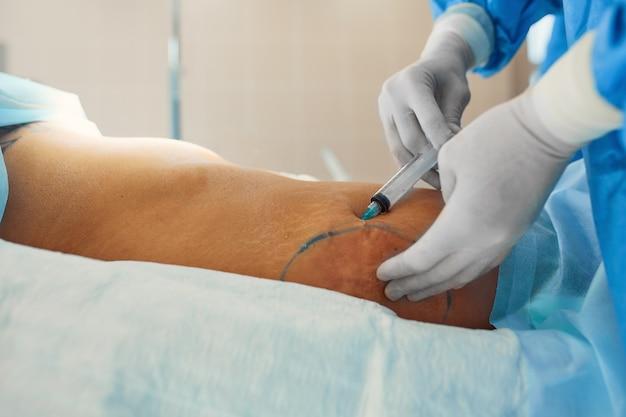 Cirurgia plástica corretiva em lipoaspiração para lipoaspiração de depósitos de gordura no abdômen.