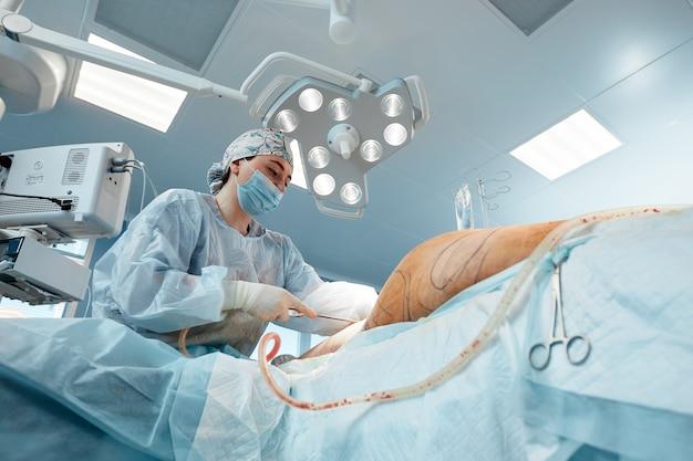 Cirurgia plástica de lipoaspiração em ambiente real de sala de cirurgia, mostrando o grupo de cirurgiões durante a operação.