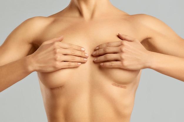 Cirurgia plástica do seio feminino