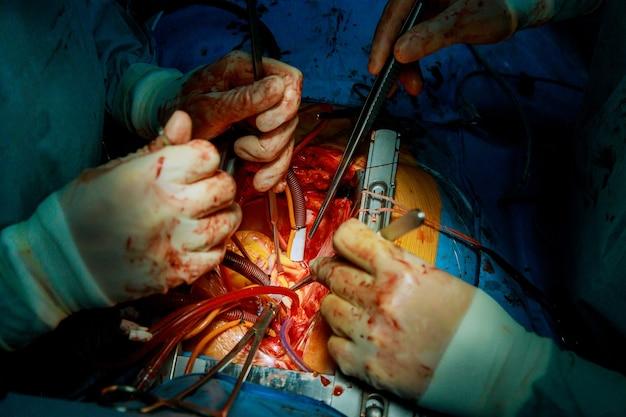 Cirurgião cirúrgico e equipe realizam cirurgia torácica em caso de câncer de pulmão