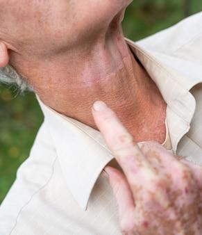 Close da mão masculina e pescoço com pigmentos de vitiligo ao ar livre