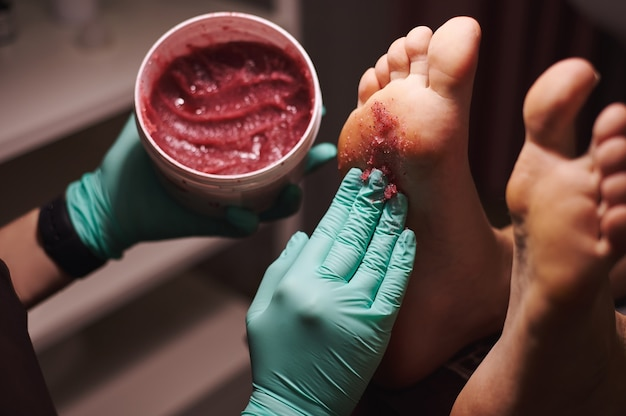 Close das mãos da esteticista segurando um frasco com esfoliante para os pés e aplicando-o nos pés da mulher no salão de beleza