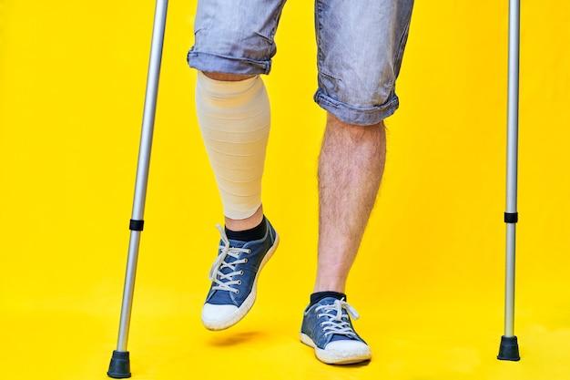 Close das pernas de um homem, de frente, de short e muletas, com a perna enfaixada.