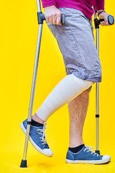 Close das pernas de um homem de perfil direito, de short e muletas, com a perna enfaixada.